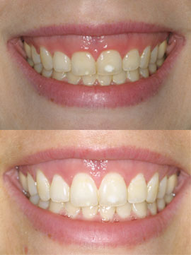 Before and after pictures of crown lengthening at Implant & Periodontal Associates, NW