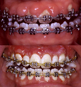 Before and after images of a gingivectomy by IPANW - Richland, WA