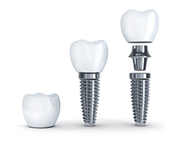 Dental implants are often made out of titanium, but it can also be made out of zirconia.