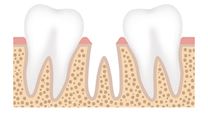 If you have a missing tooth, you should replace it with a dental implant before it turns into a larger issue.