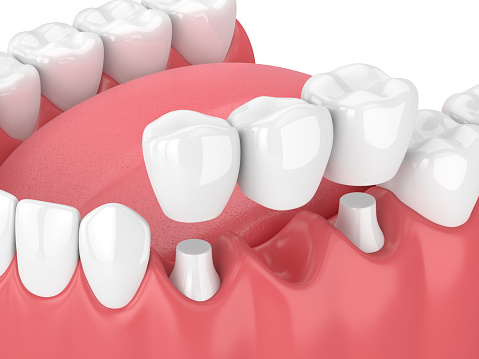 For one or more dental implants, a bridge can be placed as the final restoration.