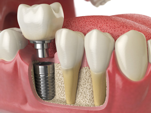 For single dental implants, a crown can be placed as the final restoration.